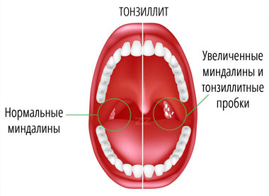 Гнойные пробки при хроническом тонзиллите